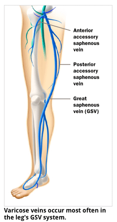 Varicose Veins - Varithena® Treatment